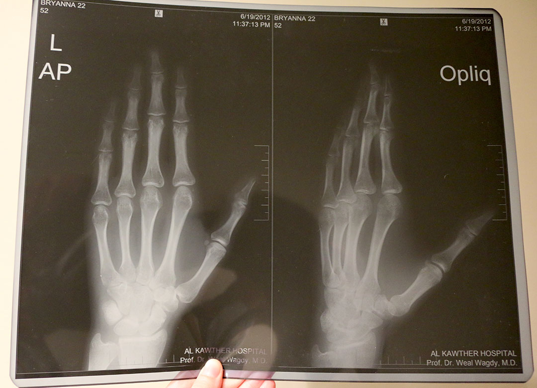 My hand x-rays after being mugged in Hurghada, Egypt and hitting my hand hard on the road